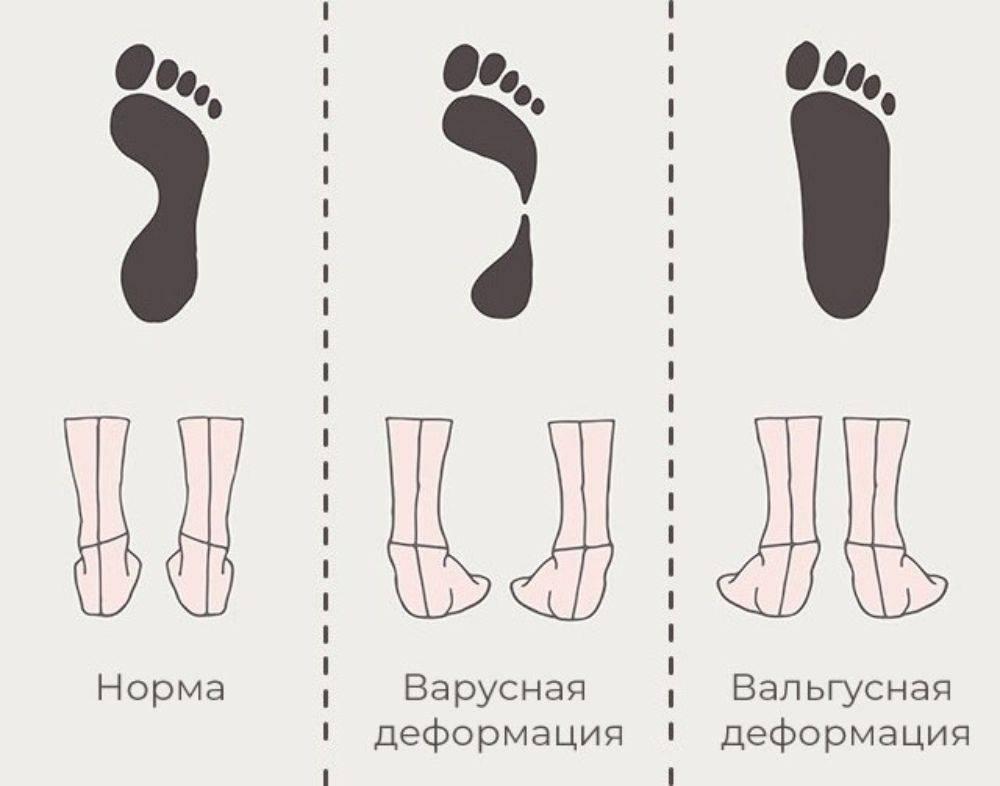 Вальгусная деформация стопы у детей. лечение. профилактика. москва. цена. акции