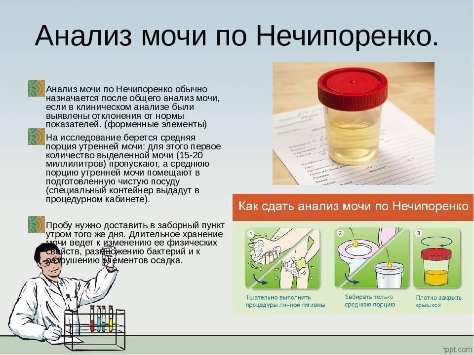 Белок в моче у женщин: причины появления белка в моче у женщин, прием уролога в москве