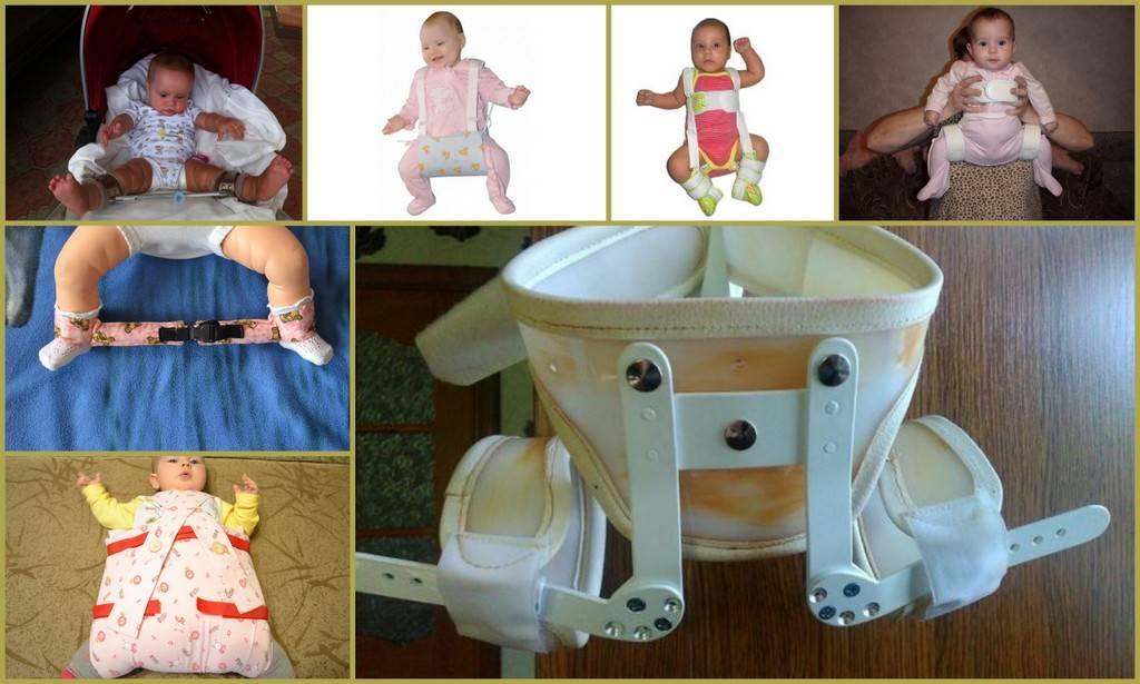 Рентген (рентгенография) тазобедренного сустава у детей
