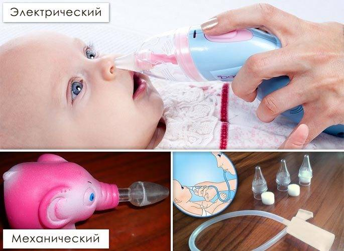 Как правильно почистить носик грудному ребенку от соплей