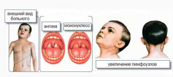 Инфекционный мононуклеоз у ребенка: симптомы и лечение, профилактика, комаровский