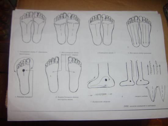 Ортопедические стельки при вальгусной деформации стопы