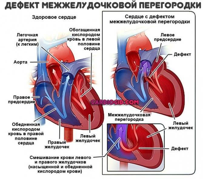Шумы в сердце: виды, причины, диагностика