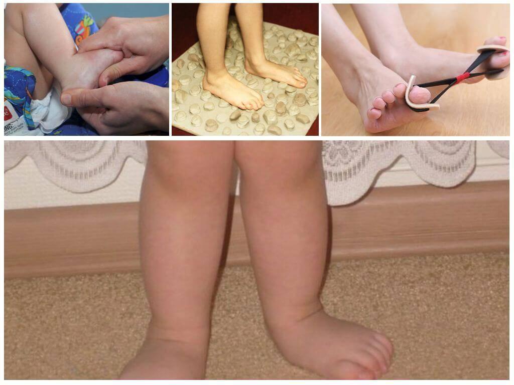 Вальгусная деформация: причины, симптомы, лечение. всё о стопе