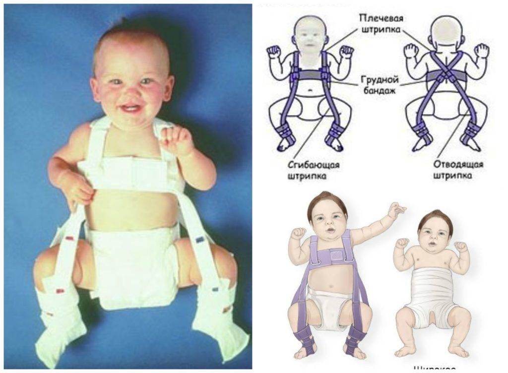 Как делают рентген тазобедренных суставов грудничкам, и в каких ситуациях он нужен?