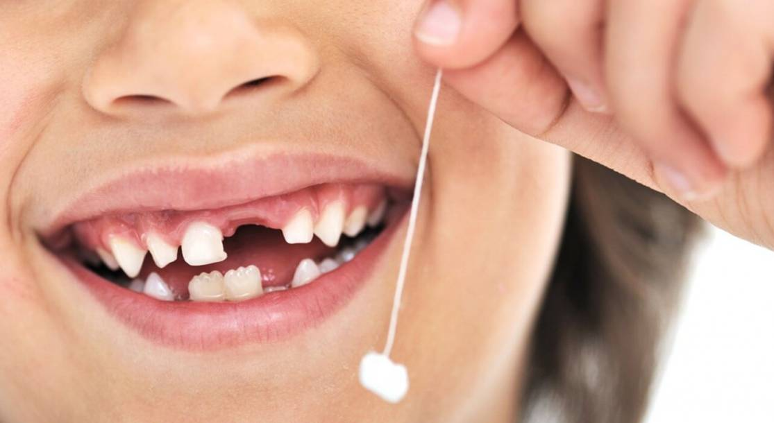 Пластинки на зубы: показания, виды пластинок, установка, фото до и после, стоимость, отзывы