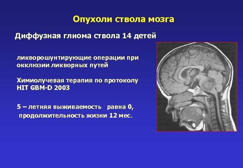 Опухоль мозга у ребенка