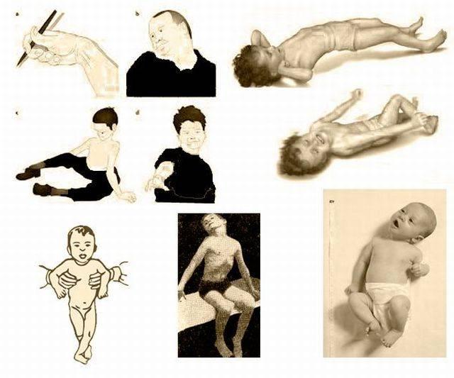 Гипертонус мышц у детей до года: симптомы, последствия и лечение, массаж при гипертонусе