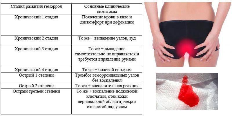 Гкб №31 - геморрой у женщин: симптомы, признаки, лечение