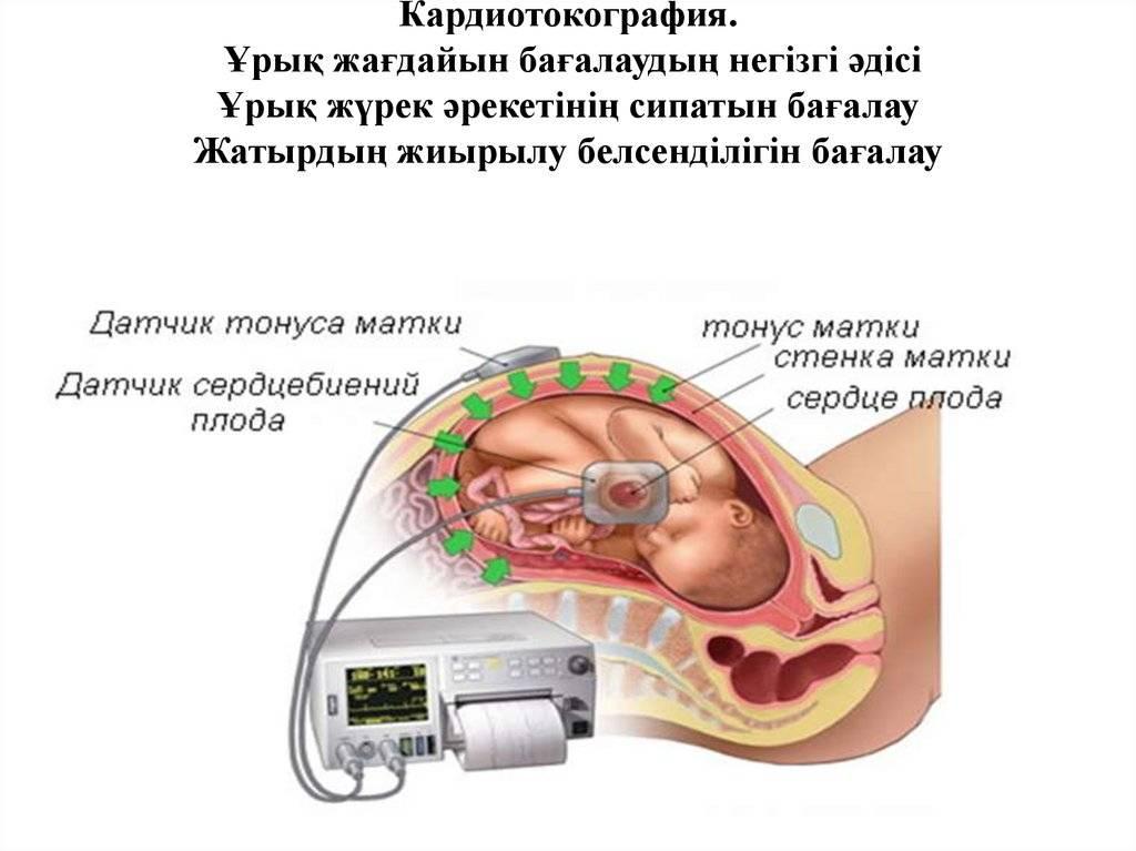 Тонус матки при беременности