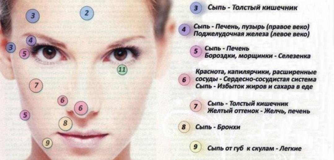 Розацеа на лице: причины и лечение, фото до и после, препараты