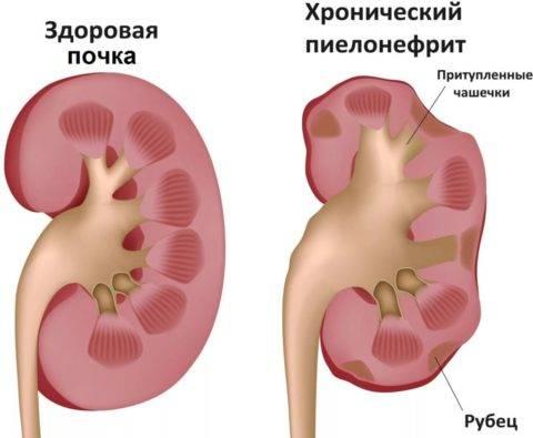Диагностика и лечение рака лоханки почки и мочеточника в европейской клинике