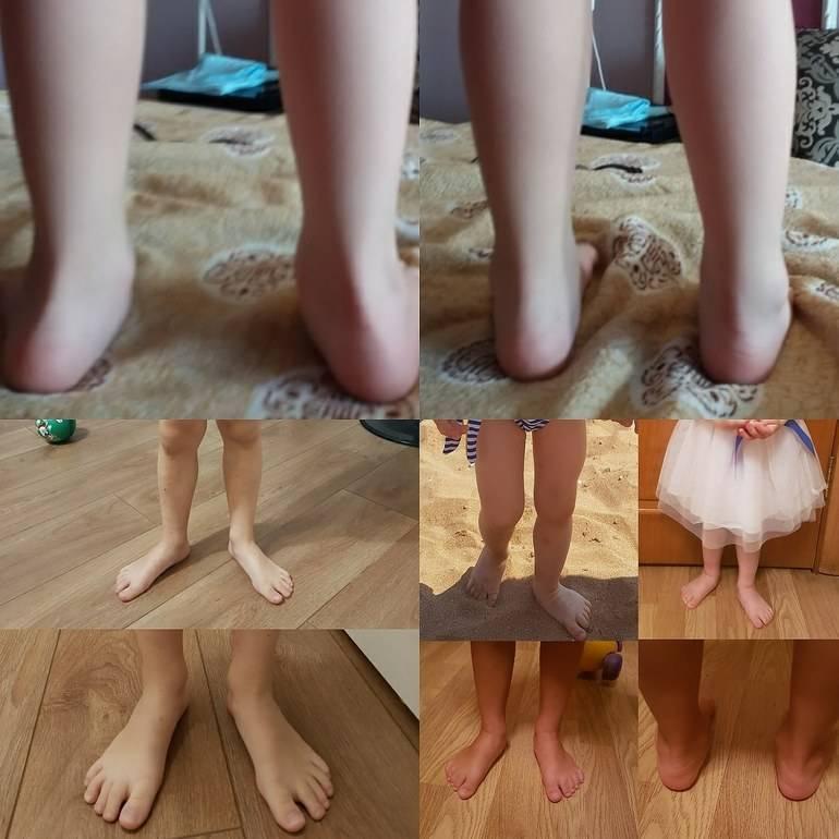 Вальгусная деформация стопы у детей | симптомы | диагностика | лечение - docdoc.ru