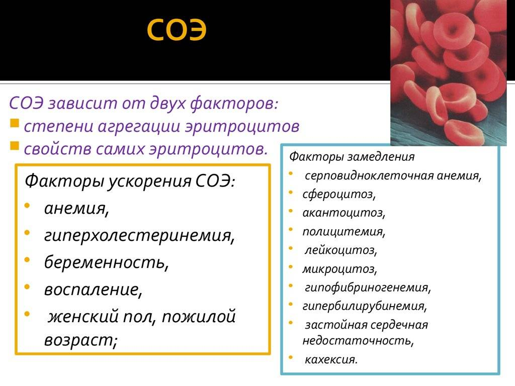 Понижены эритроциты в крови у ребенка (эритропения) - причины