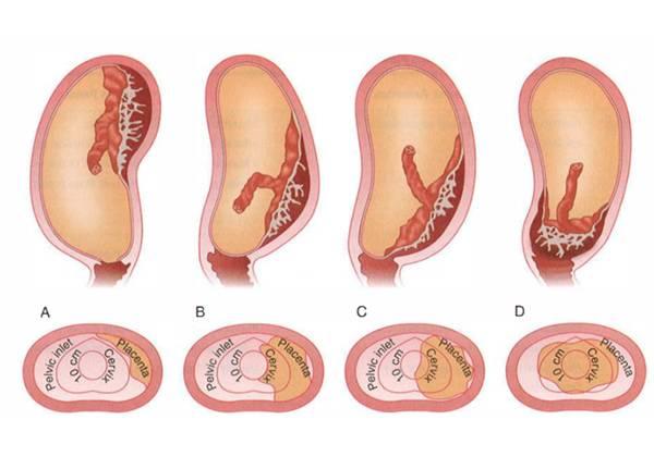 Инфантильность (гипоплазия) матки