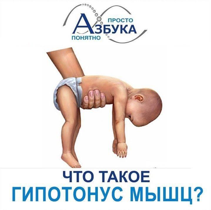 Синдром мышечной дистонии