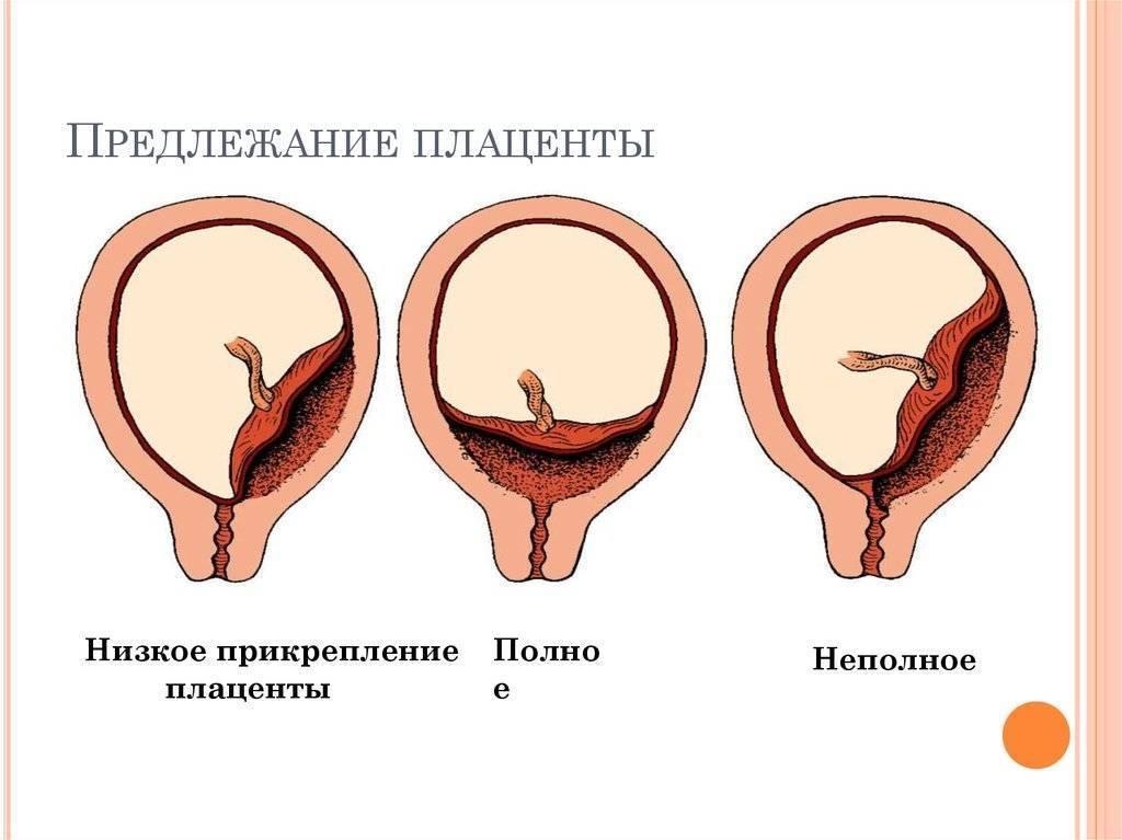 Отслойка плаценты. причины отслойки плаценты на ранних сроках