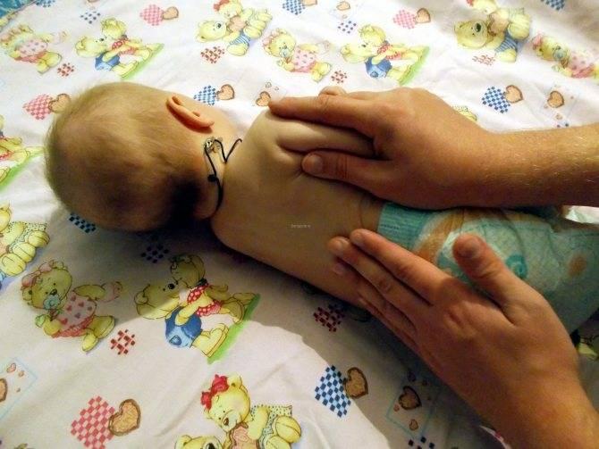 Синдром мышечной гипотонии у детей и взрослых