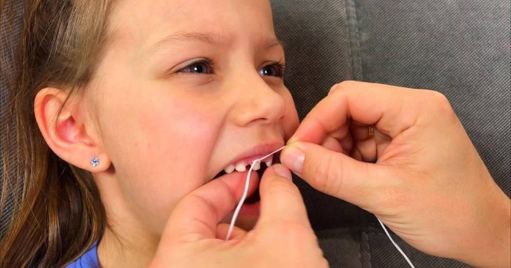 Удаление зубов. сколько зубов можно удалить одновременно?