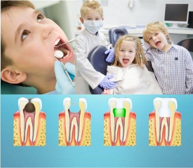 Кариес молочных зубов: лечение кариеса молочных зубов у детей в москве - dental fantasy