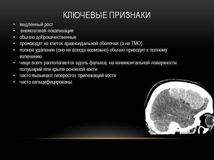 Опухоли головного мозга — симптомы и способы лечения опухоли головного мозга в клинике целт