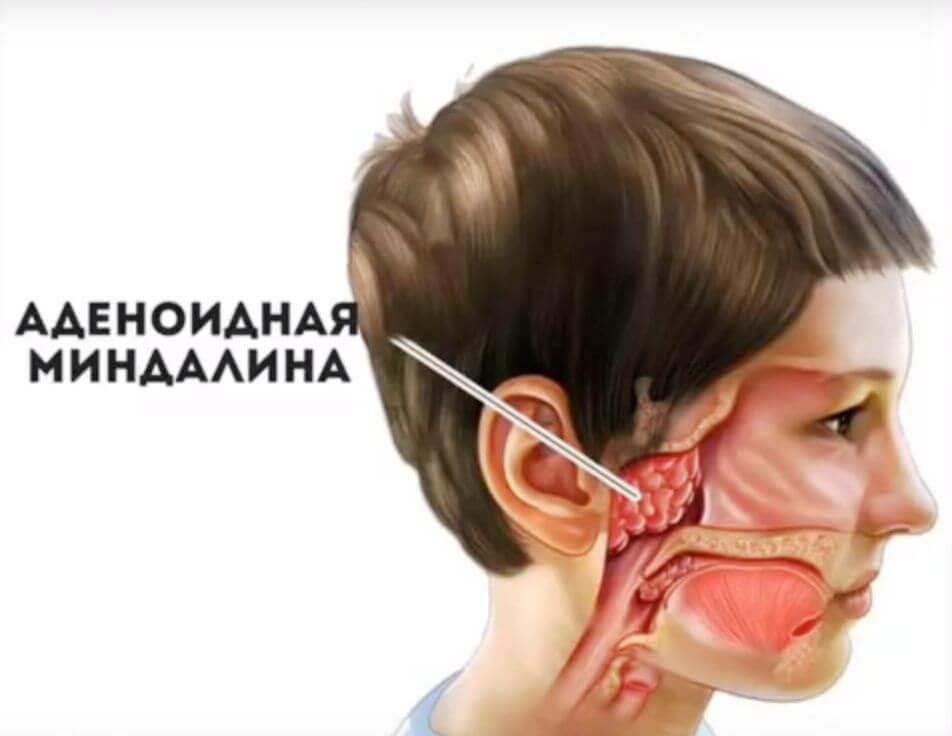 Болезни полости рта: грибковые и вирусные, методы лечения и их профилактика
