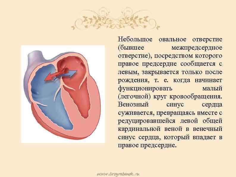 Дефект межпредсердной перегородки - лечение эндоваскулярными методами в отделении института амосова.