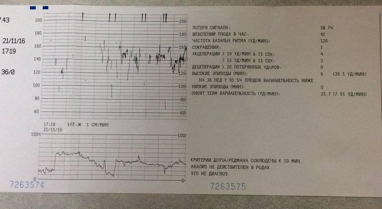 Как делают кардиотокографию плода, каковы нормы и расшифровка результатов обследования ктг?