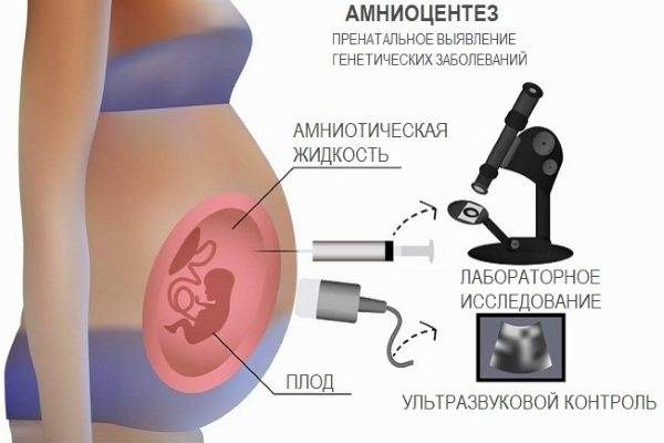 Амниоцентез, или пункция плодного пузыря. зачем и как проводится амниоцентез  плода.