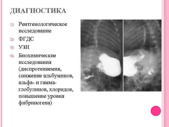 """Врожденный порок сердца у новорожденных: симптомы, лечение   клиника """"центр эко"""" в москве"""