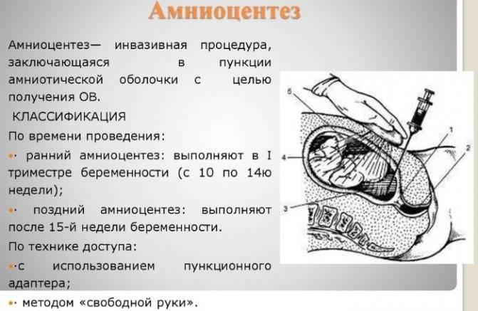 Нипт - неинвазивный пренатальный тест и его место в практике врача акушера-гинеколога.