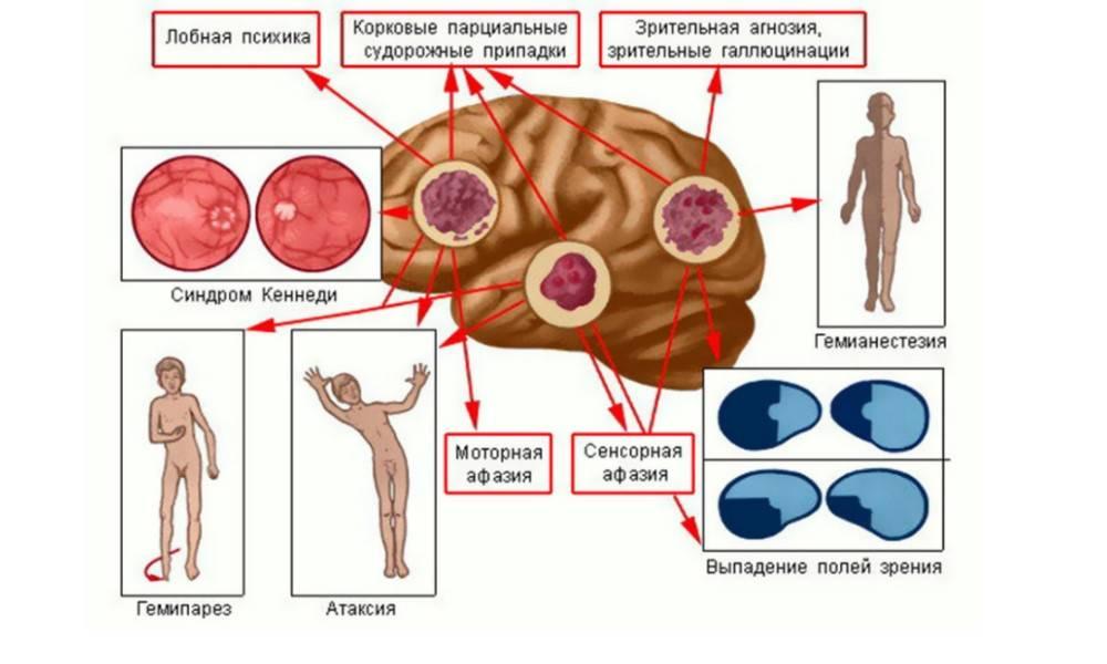 Рак желудка: симптомы и первые признаки у женщин, как проявляется рак желудка, причины рака желудка
