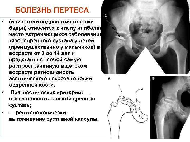 Внутрисуставные инъекции под контролем узи | клиника «медик»