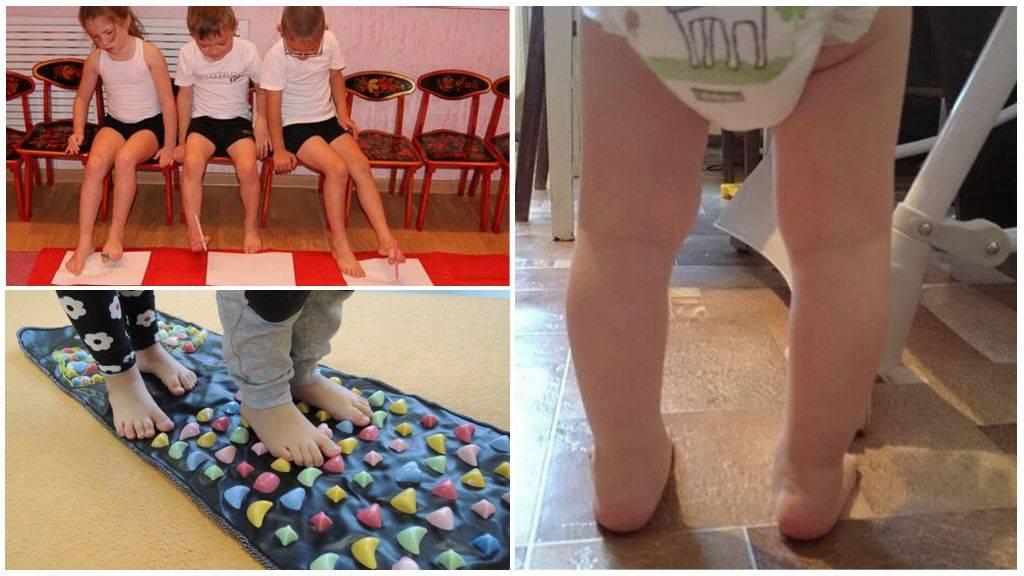 Косолапие у ребенка. лечение нарушений - доктор позвонков