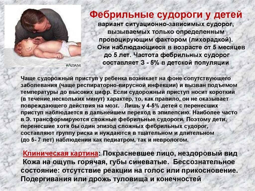 Эпилепсия у детей: причины, симптомы, лечение - полезные статьи отделения педиатрии ао «медицина» (клиника академика ройтберга)