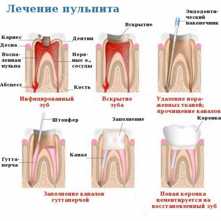 Причины пульпита молочного зуба у детей и лечение
