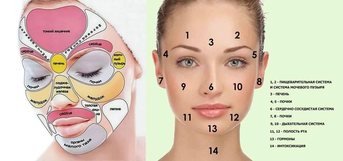 Прыщи на лице: диагностика, лечение и профилактика