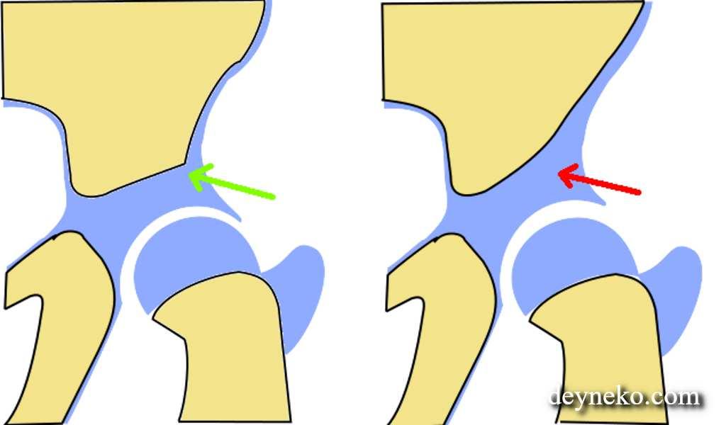 Узи тазобедренных суставов новорожденным