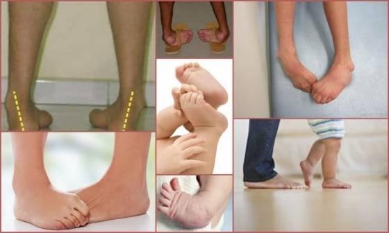 Плоско варусная деформация стопы - лечение в челябинске и екатеринбурге