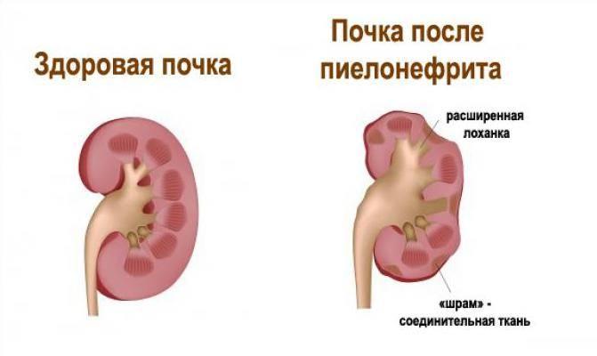 Опухоли лоханки и мочеточника
