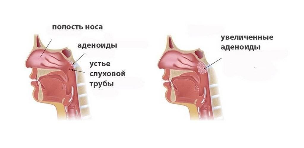 Аденоиды у ребенка   причины, как лечить, последствия   лор боклин а.к.