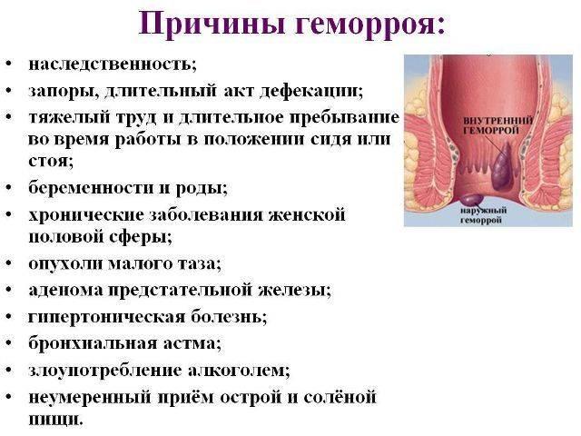 Геморрой - симптомы, причины и лечение простыми словами