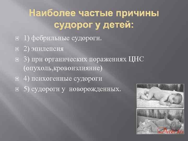 Судорожный синдром у детей - признаки, причины, симптомы, лечение и профилактика - idoctor.kz