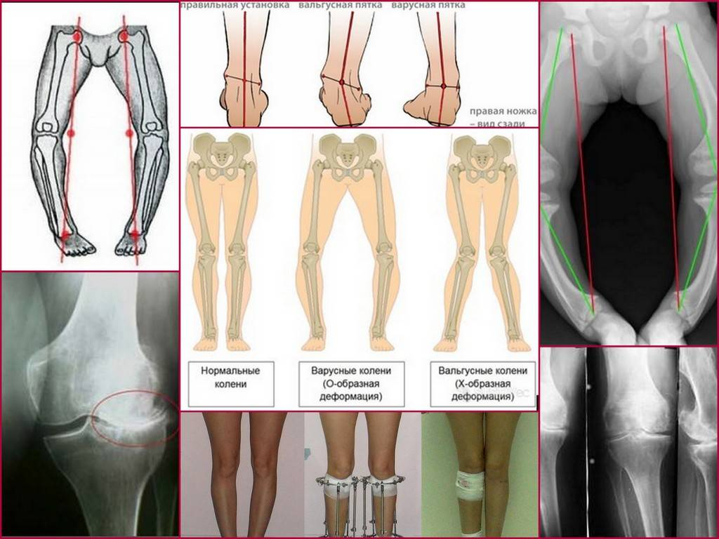Исправление варусной деформации нижних конечностей, голеней