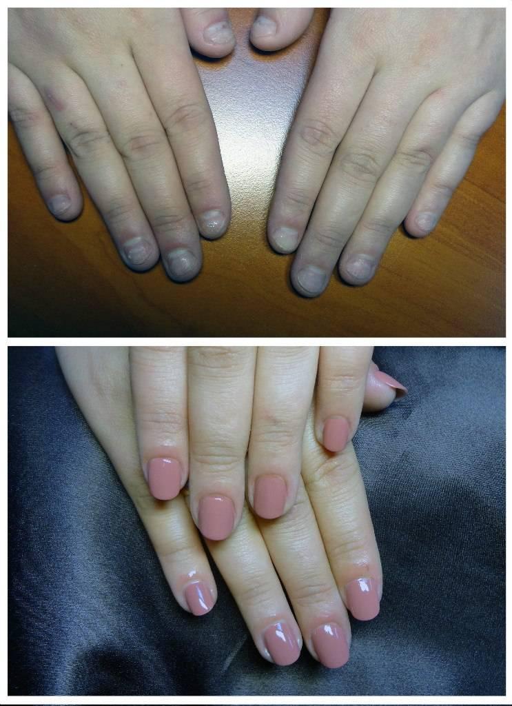 С какого возраста можно наращивать ногти
