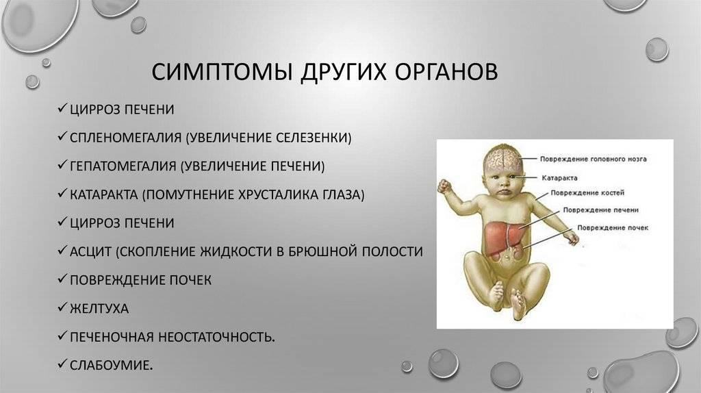 Гепатит е у детей