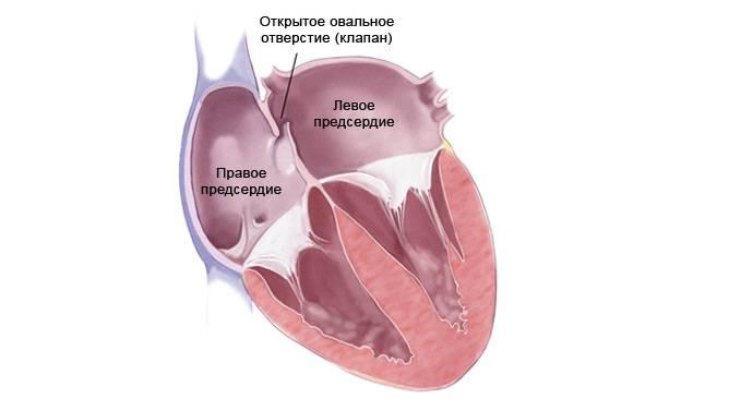 Аортальный стеноз | эндоваскулярное лечение врожденных пороков сердца в институте амосова