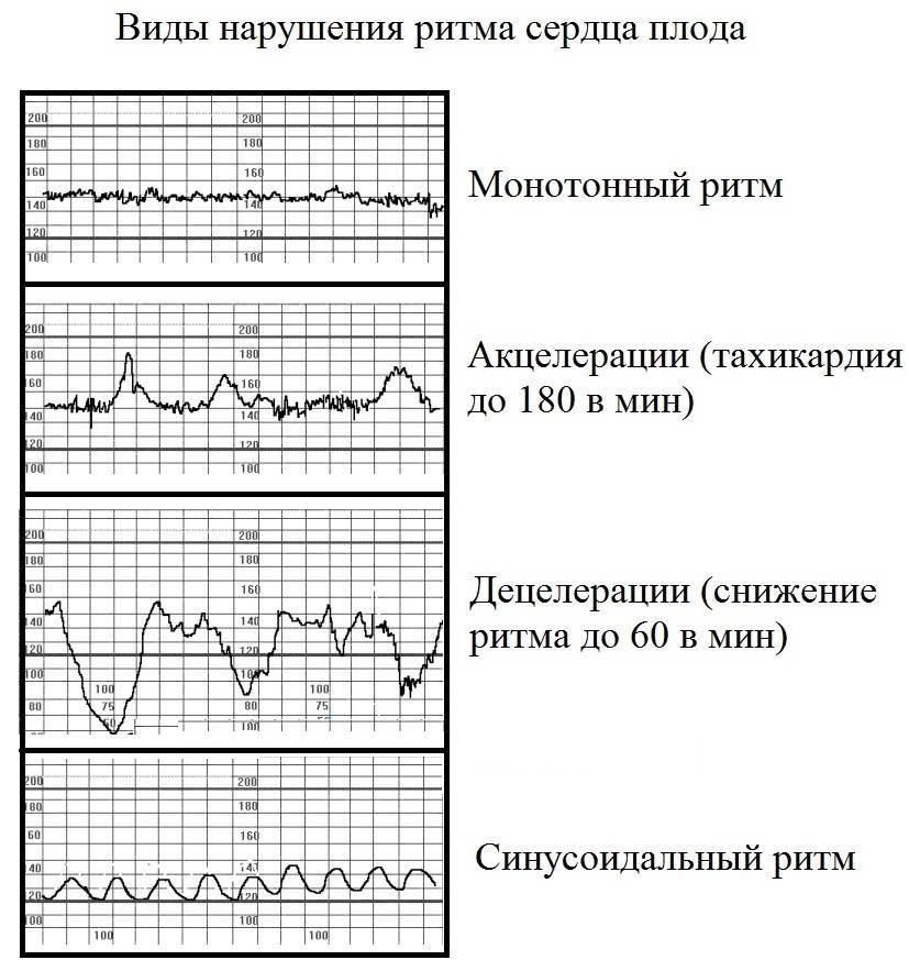 Сердцебиение плода. норма, патология, контроль