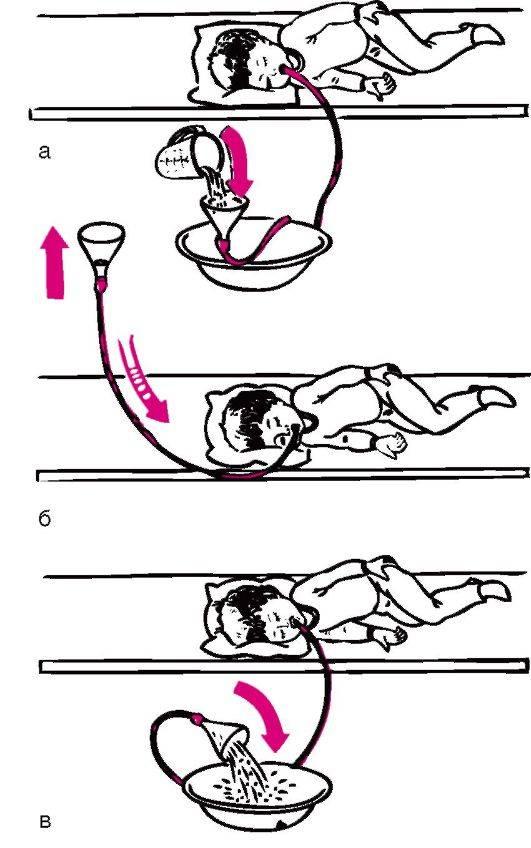 Подготовка к процедуре фгдс (гастроскопии) — памятка для пациента