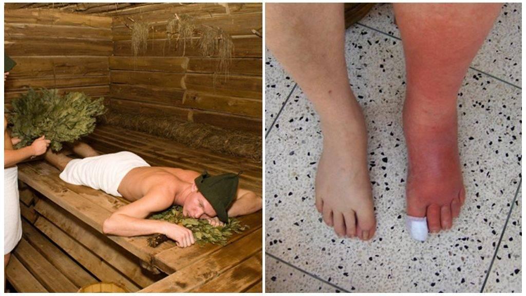 Баня при беременности: стоит ли посещать баню или сауну